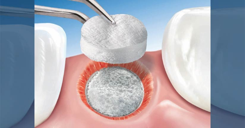 dental-surgeons-implant-center-bone-grafting