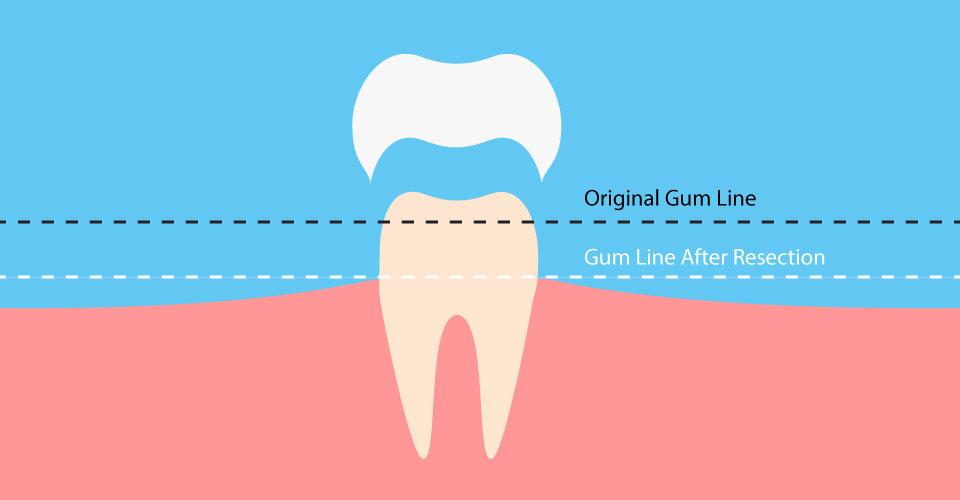 dental-surgeons-implant-center-crown_lengthening