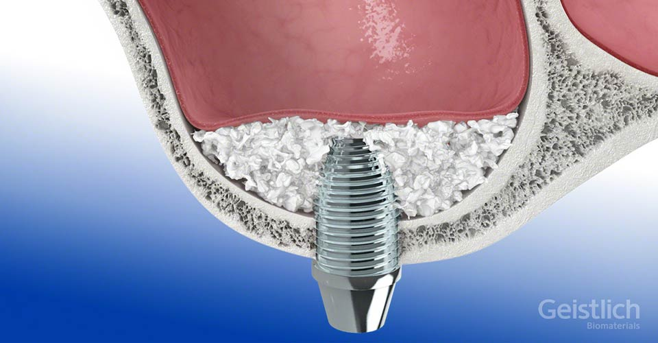 dental-surgeons-implant-center-sinus-lift-augmentation